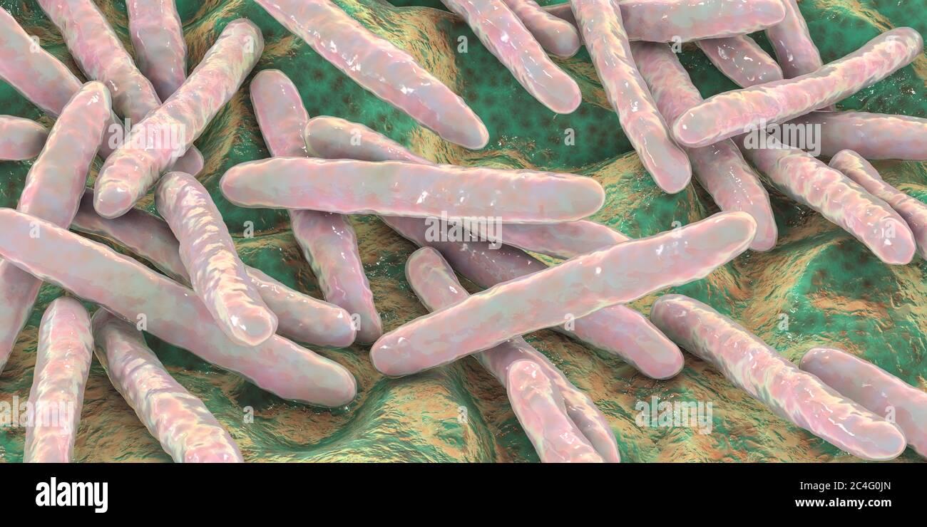 Tuberkulose Bakterien. Computer Abbildung von Mycobacterium Tuberkulose Bakterien, Gram-positive stabförmige Bakterien, die die Krankheit Tuberkulose verursachen. Stockfoto