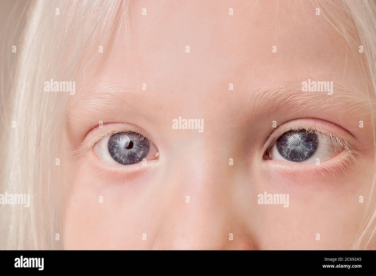 Nahaufnahme von Albino Kinderaugen, kleines Mädchen mit ...