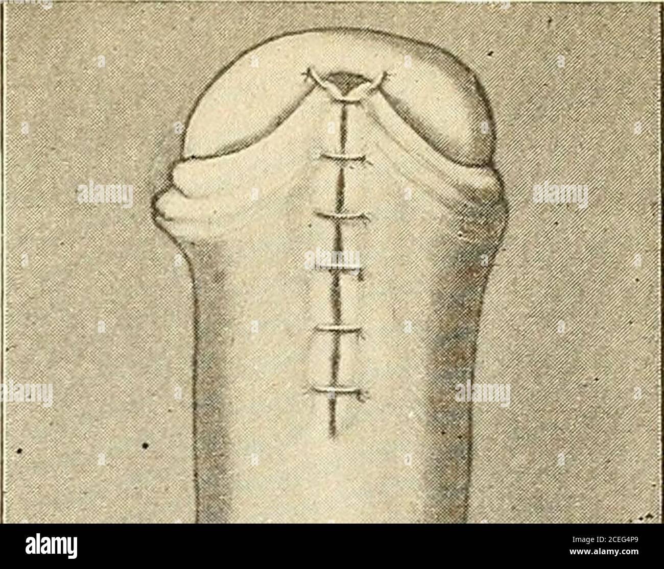 Hinten tragen vorhaut Voorhautdauerhaft hinten