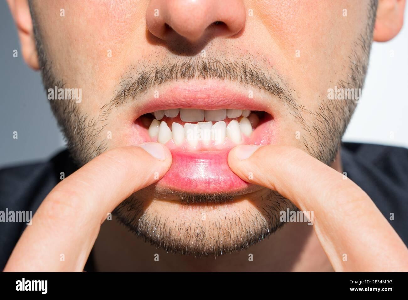 20 mit schlechte zähne Zahnzusatzversicherung mit