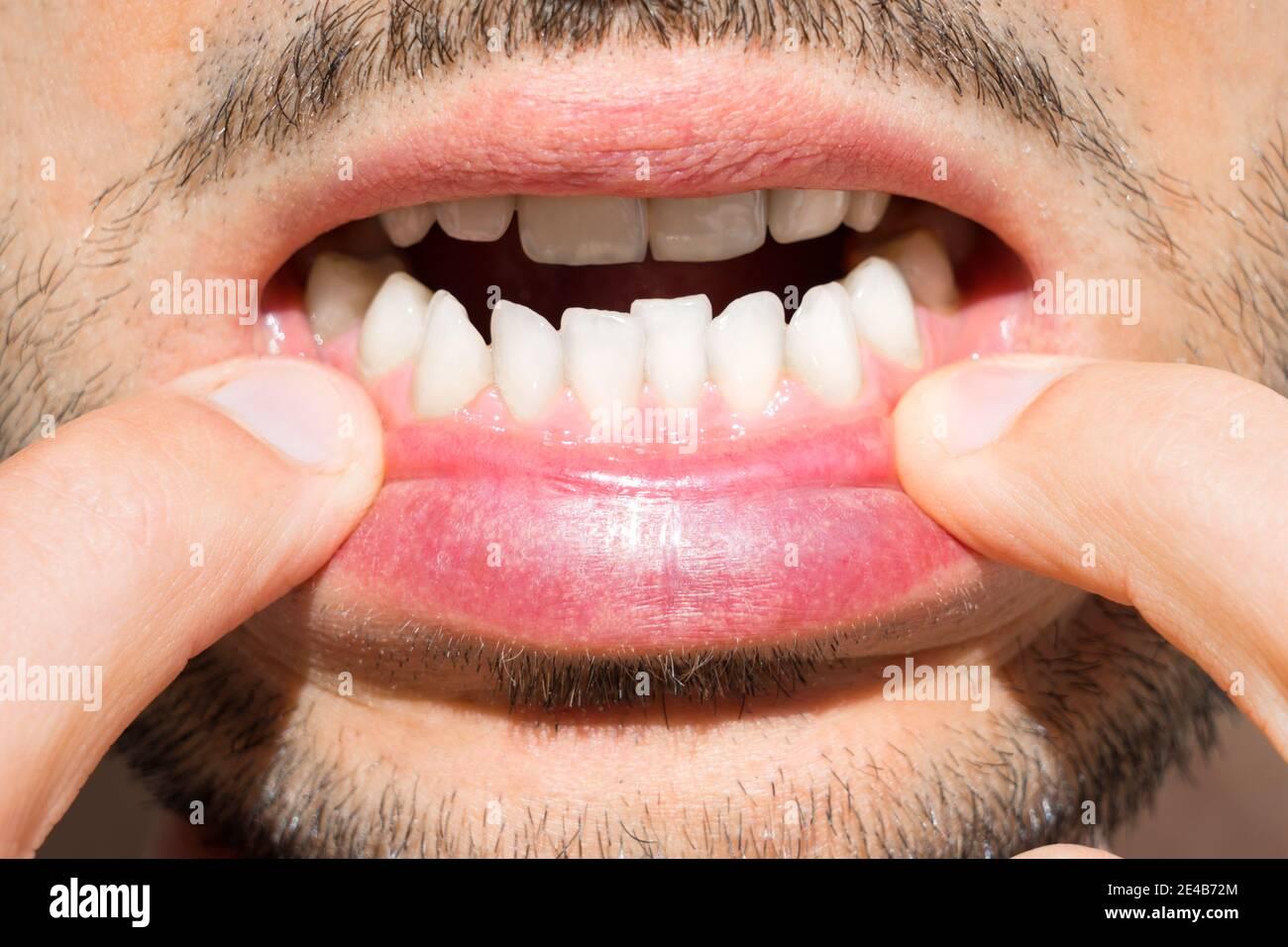Zähne schlechte Schlechte Zähne