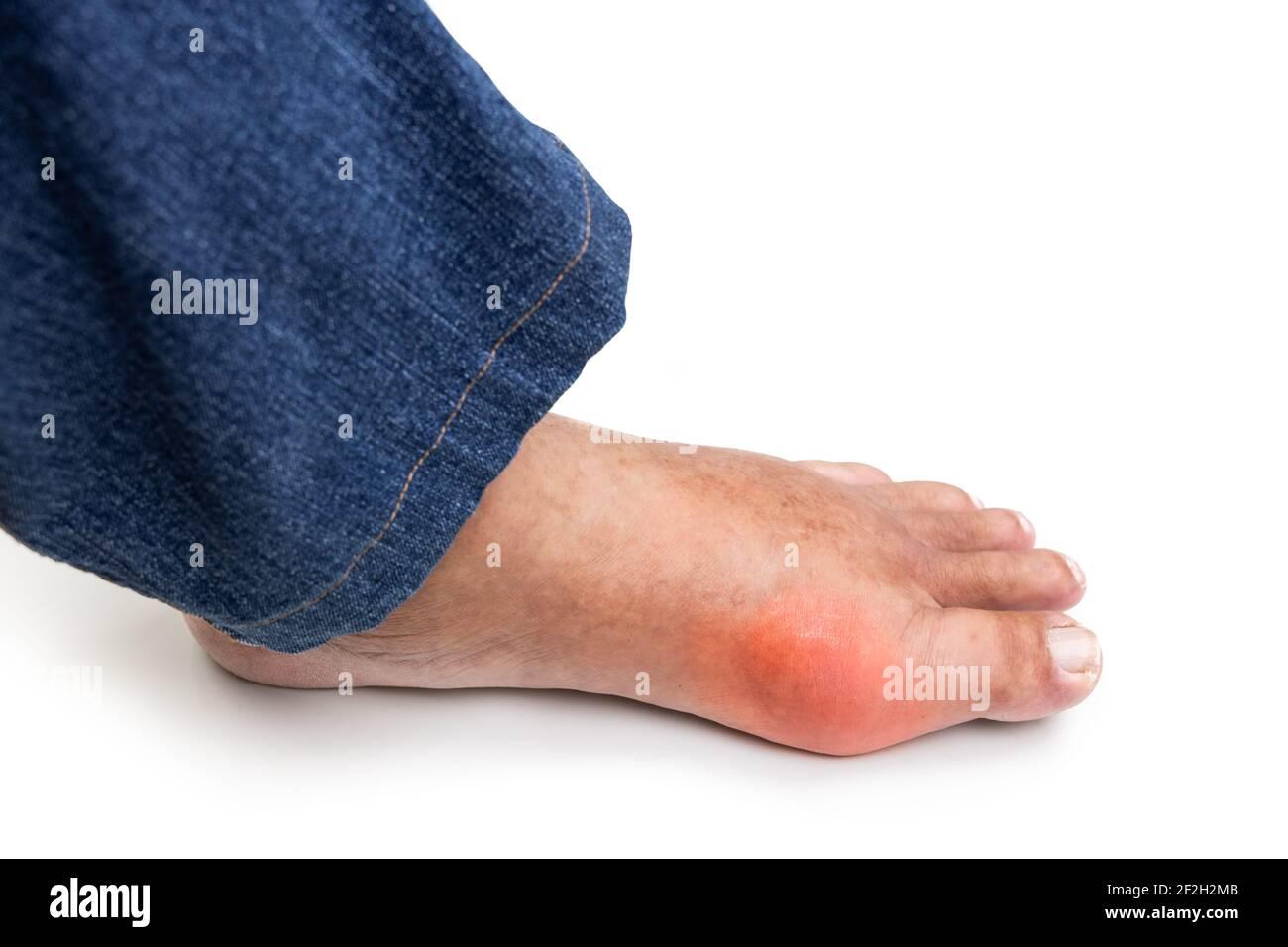 Fuß geschwollen gicht Gicht: Auslöser,