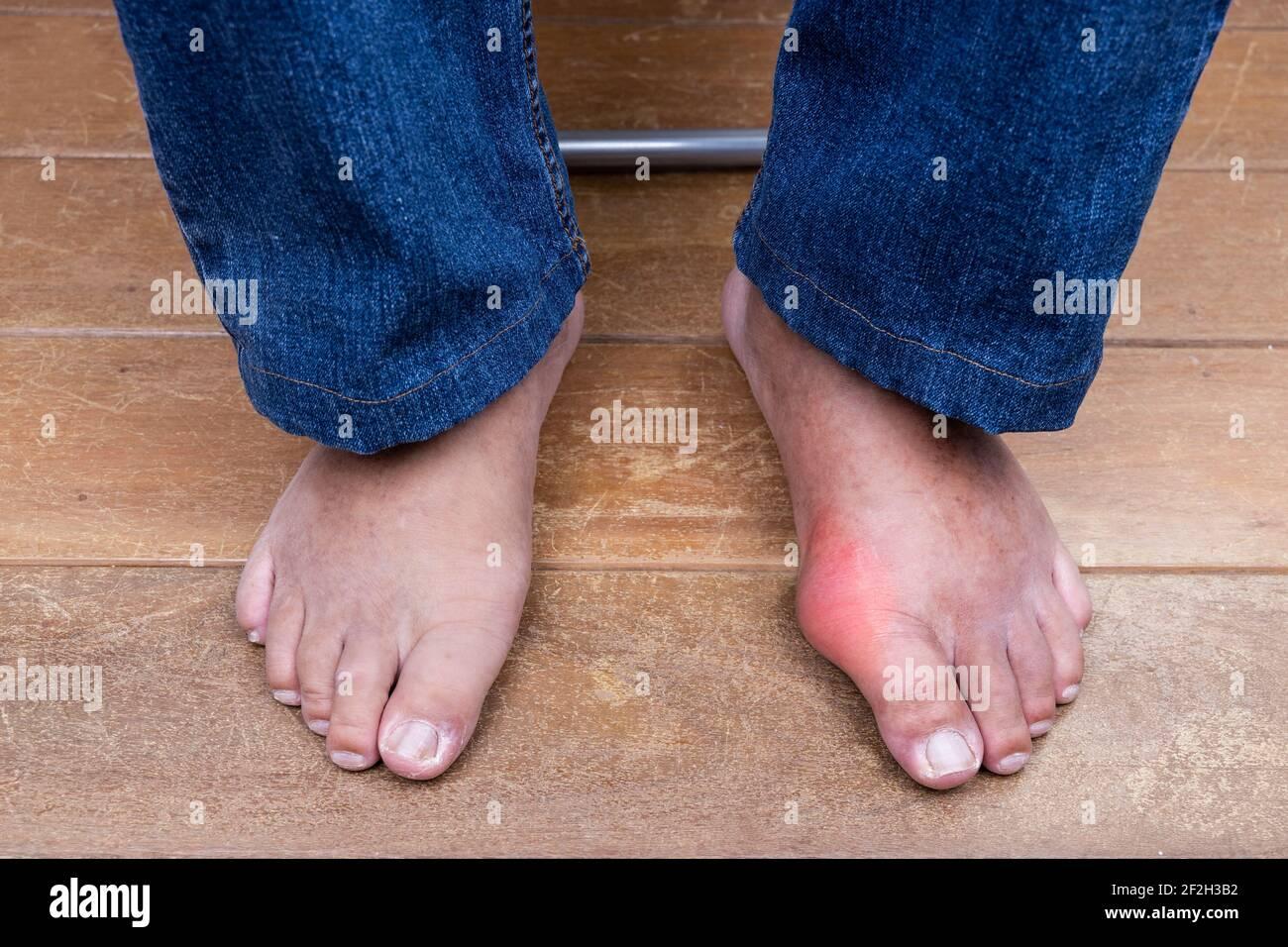 Fuß geschwollen gicht Geschwollene Füße: