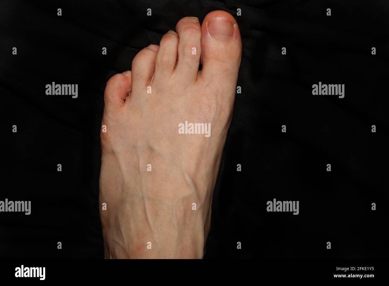Zehen schiefe Fuß und