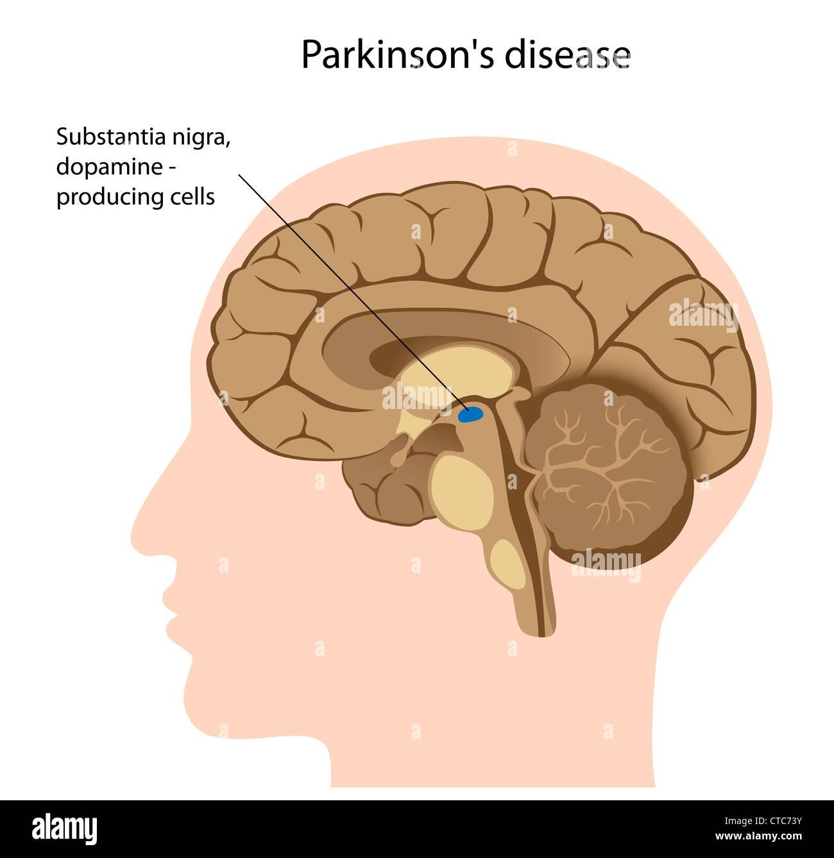 Parkinson-Erkrankung Stockfoto, Bild: 49441503 - Alamy