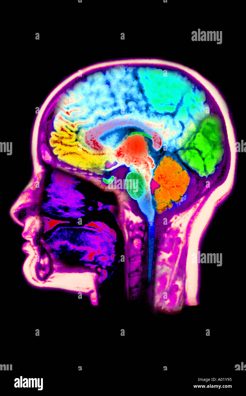 MRT des Gehirns zeigen normale Anatomie Stockfoto, Bild: 3217300 - Alamy