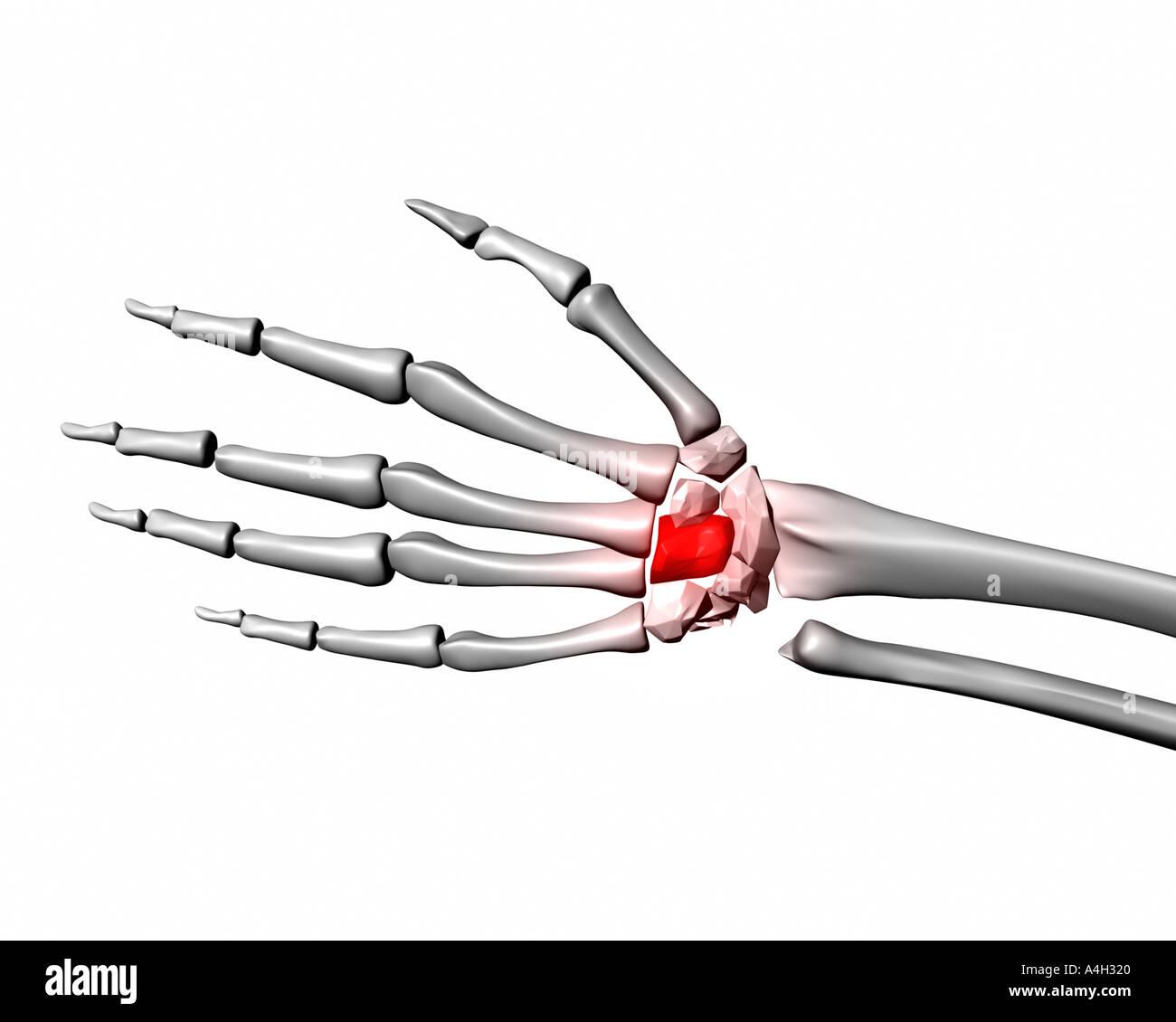 capitatum rot markiert auf menschliche Skelett hand Stockfoto, Bild ...