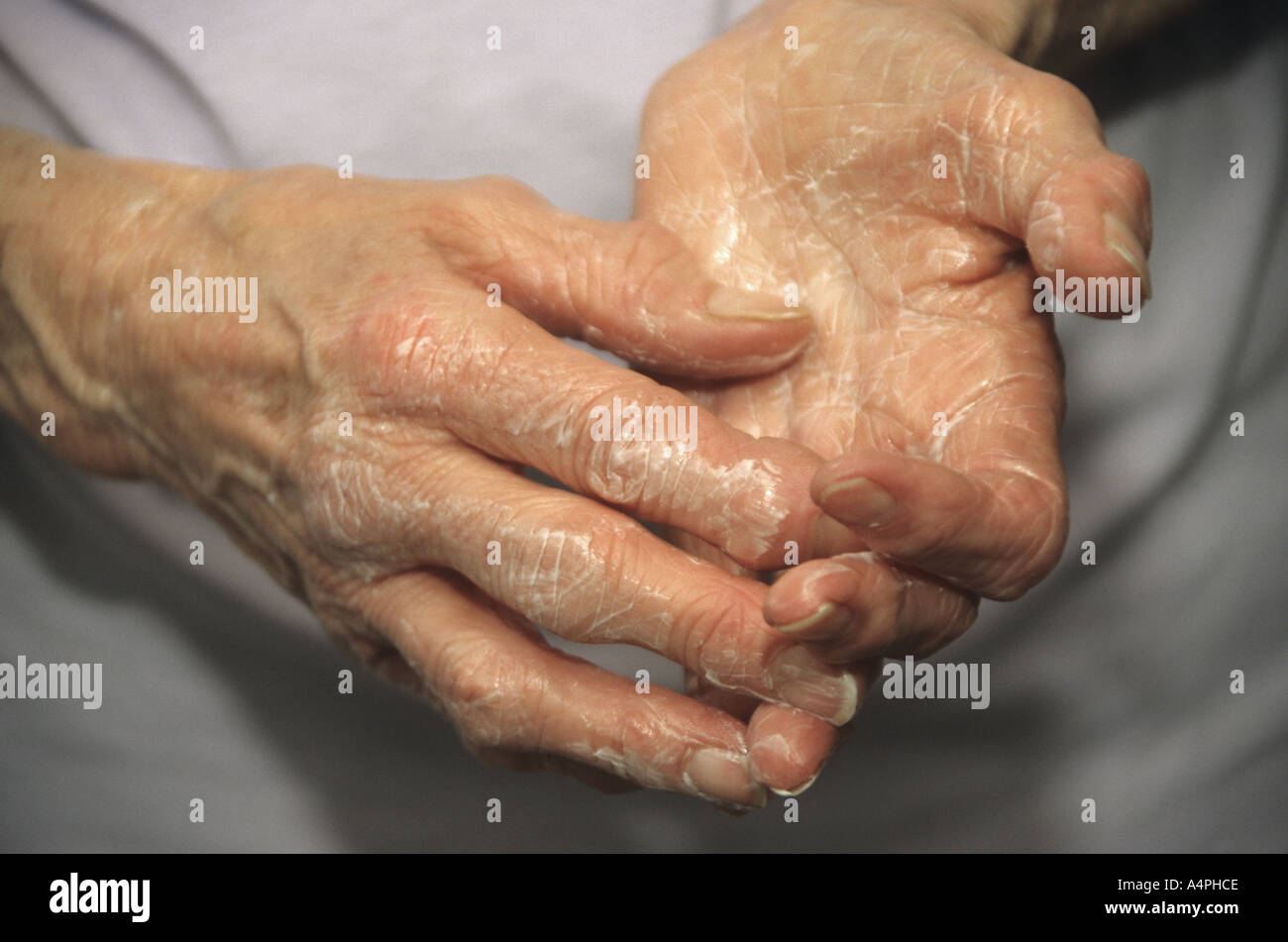 ältere arthritischen Händen setzen auf Seite Creme Stockfoto