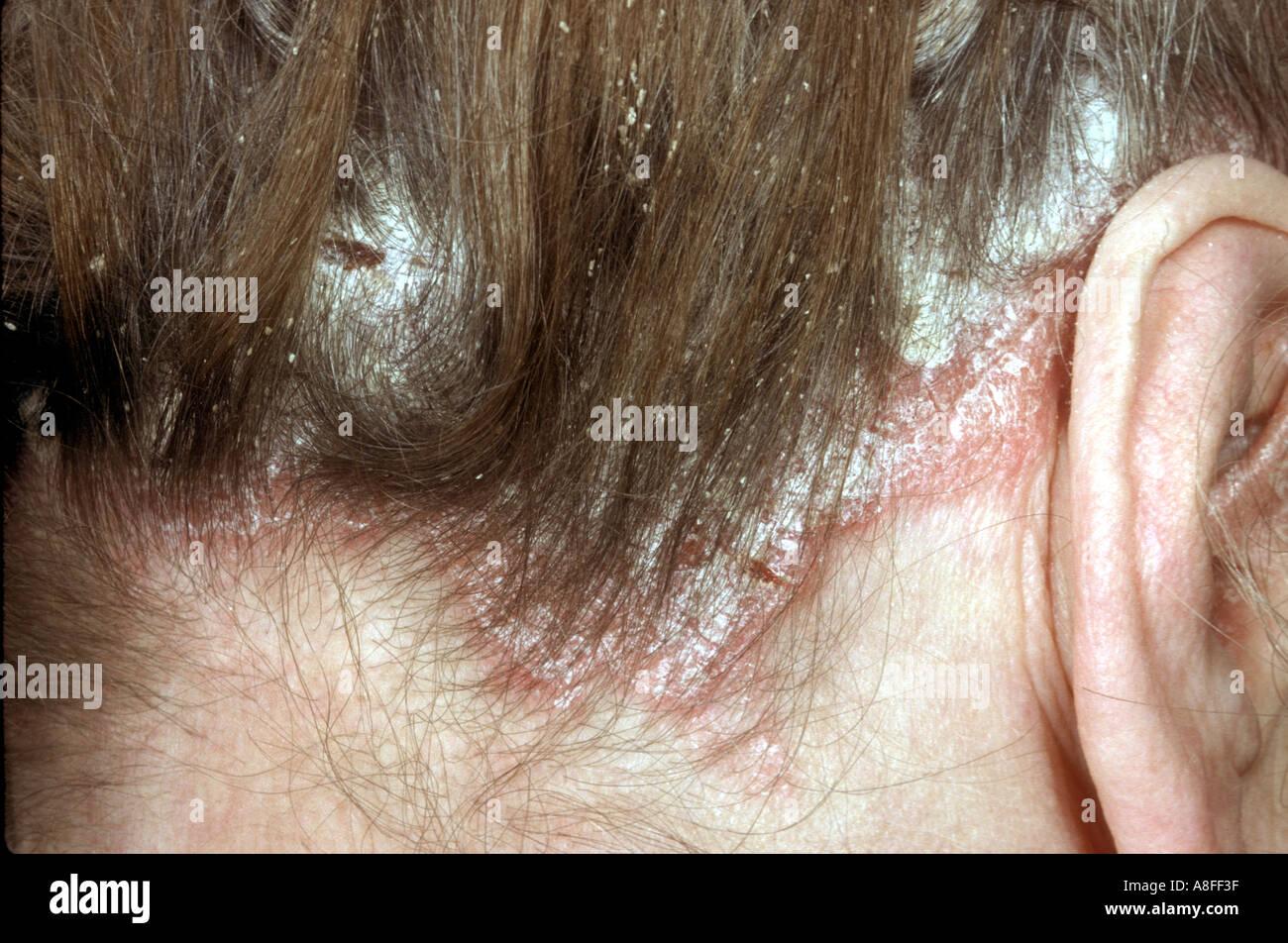 Berühmt Schuppenflechte auf Kopfhaut Stockfoto, Bild: 589631 - Alamy &PZ_39