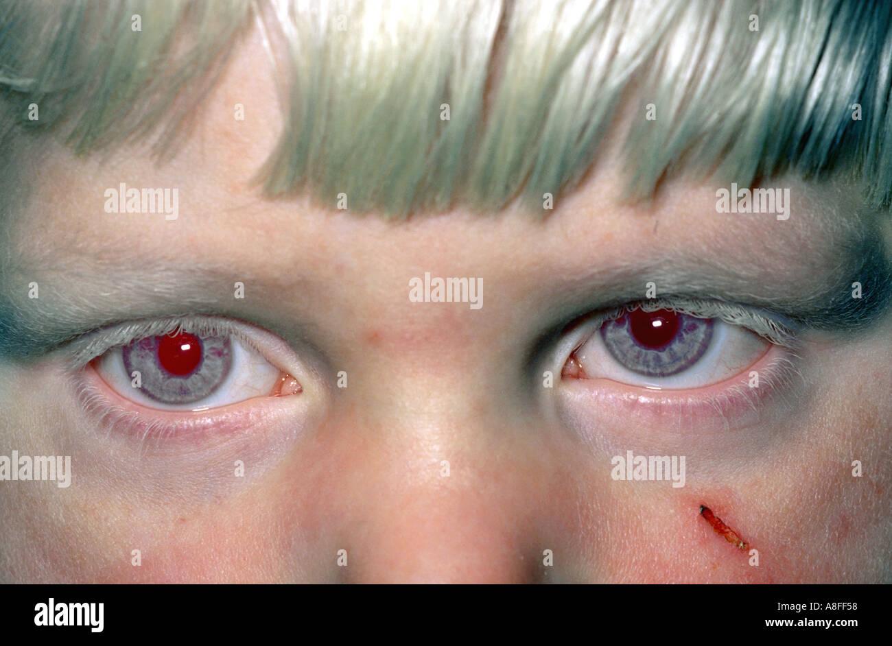 Okulärer Albinismus Stockfotos und  bilder Kaufen   Alamy