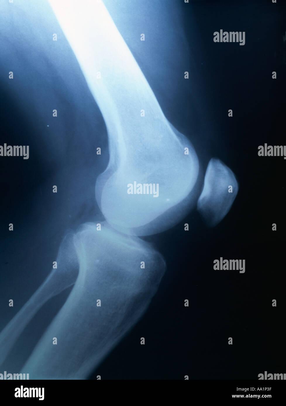 Xray Von Einem Männlichen Glied Mit Kniegelenk Kniescheibe Und