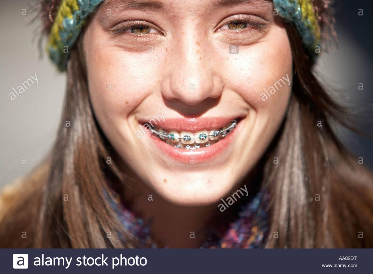 Lächelnde Teenager-Mädchen Mit Zahnspange Stockfoto, Bild