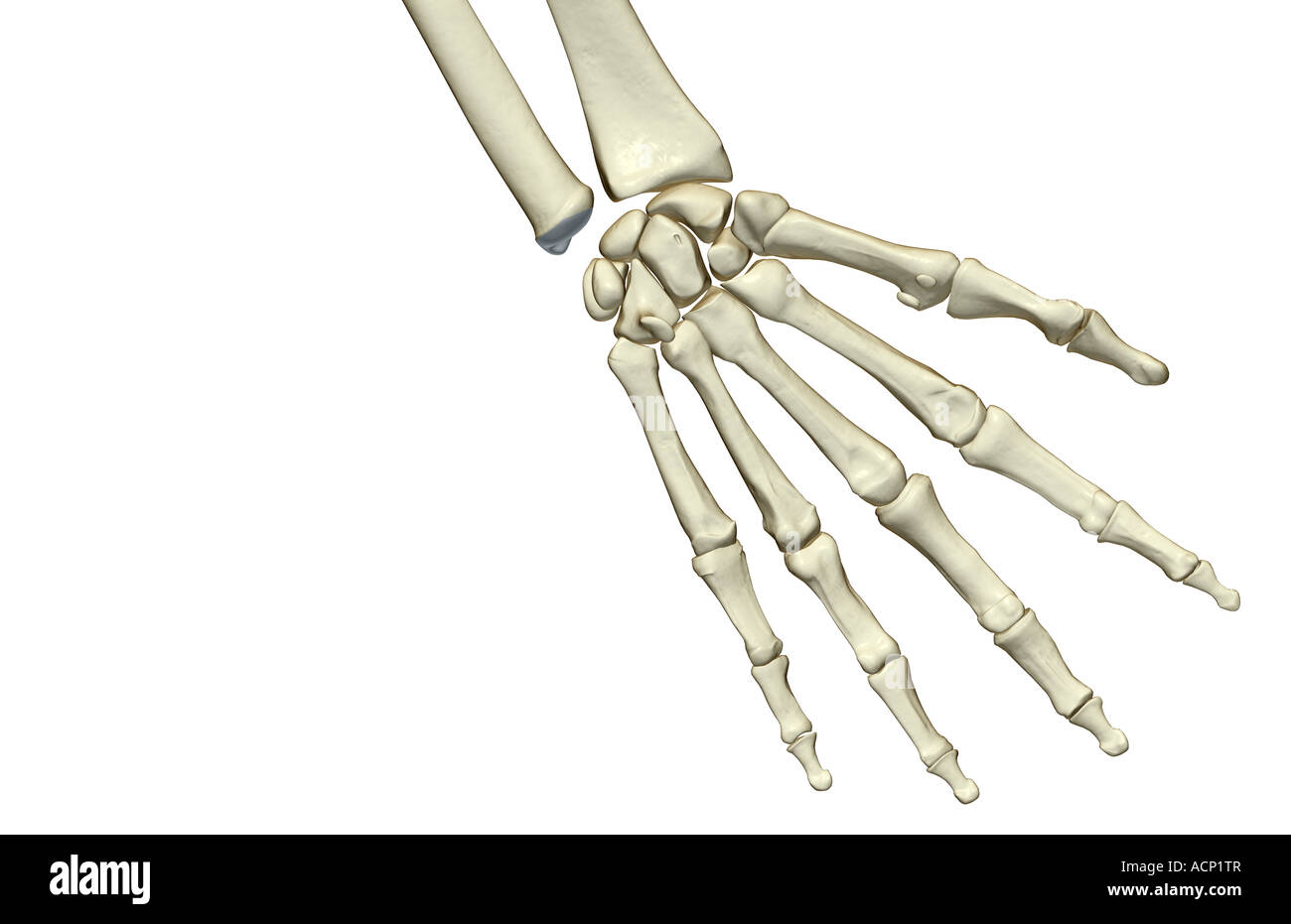 Charmant Carpals Knochen Galerie - Anatomie Ideen - finotti.info