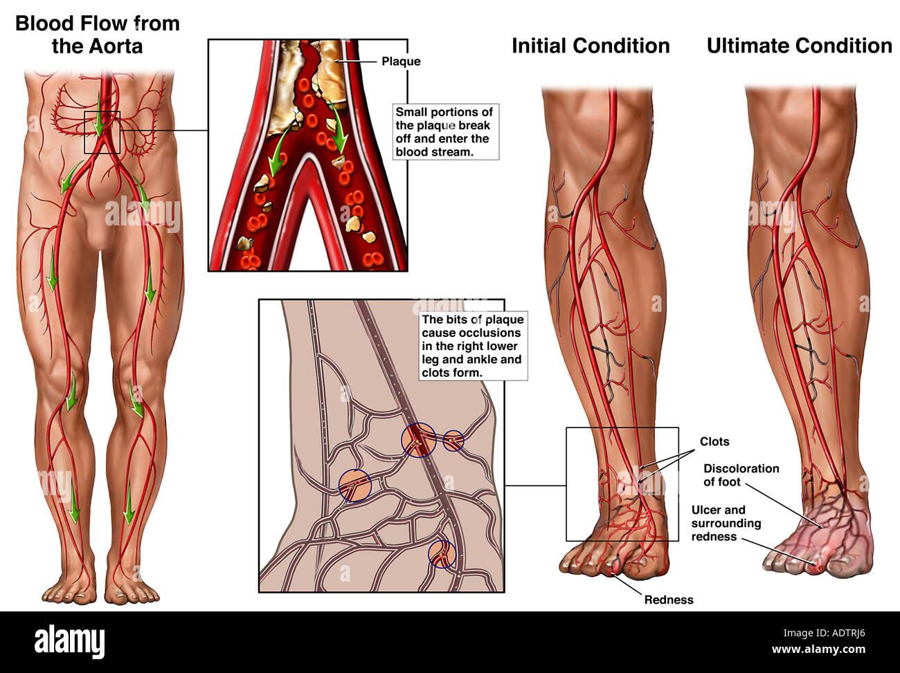 Fortschreiten der arteriellen Blockade im rechten Bein Stockfoto ...