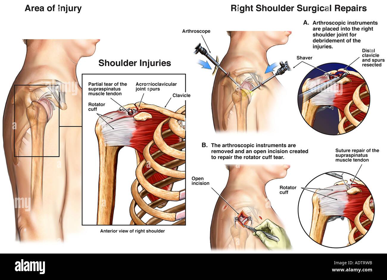 Schulter-Gelenkchirurgie - Sehne Rotatorenmanschettenrekonstruktion ...