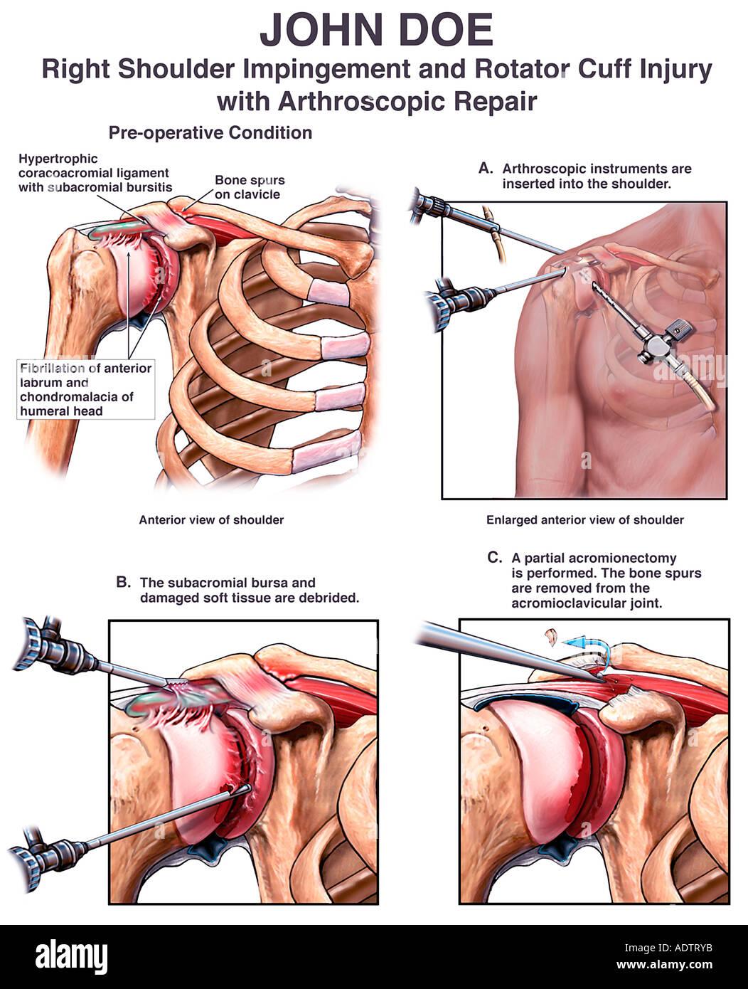 Rechte Schulter Impingement und Verletzung der Rotatorenmanschette ...