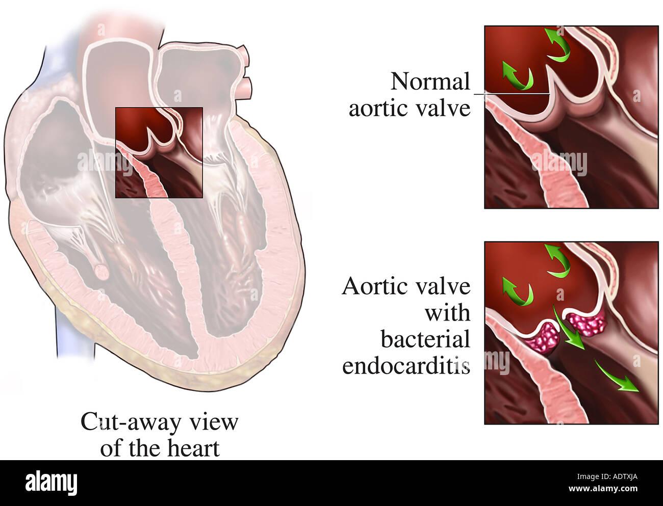 Aortic Stockfotos & Aortic Bilder - Alamy