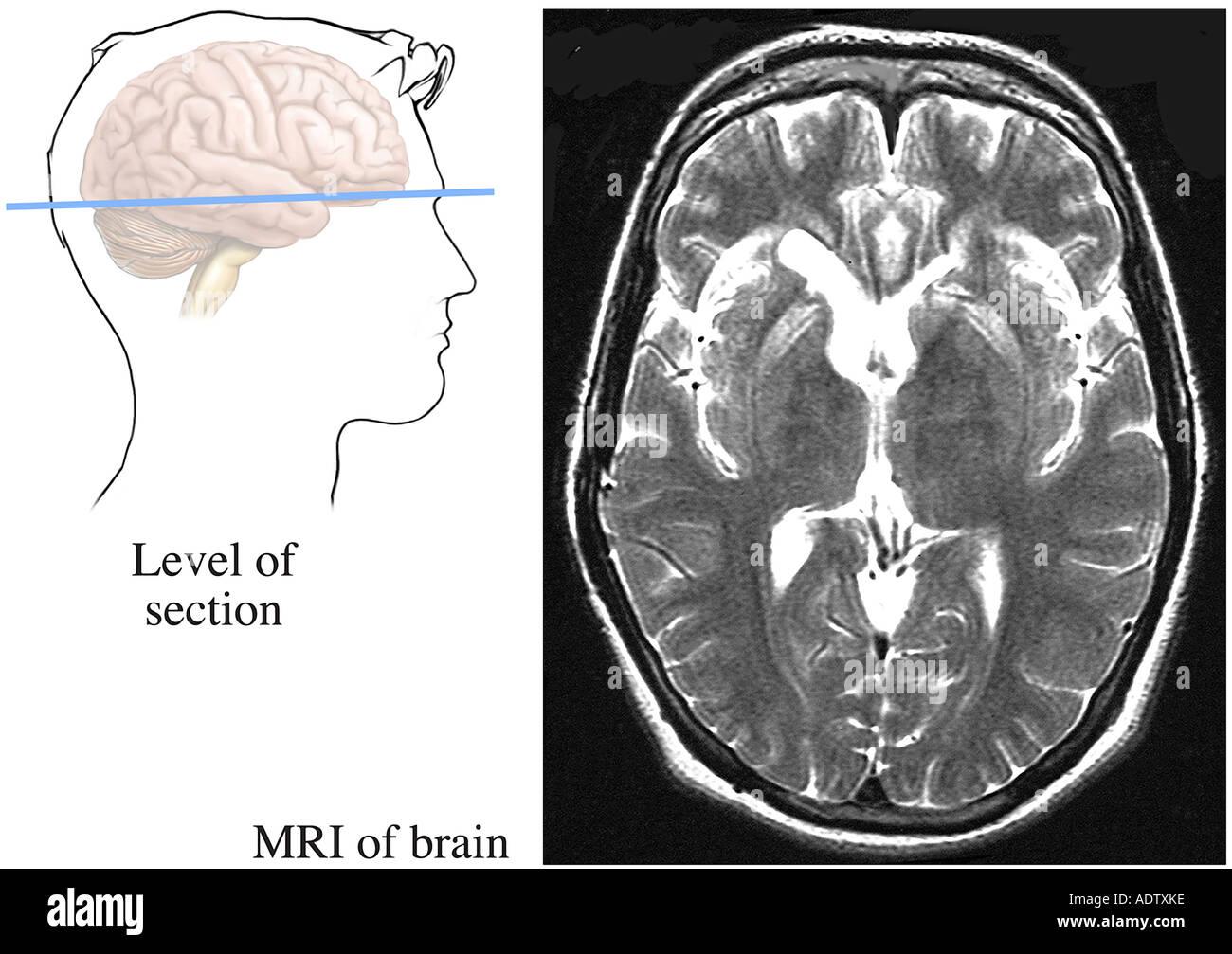 Schön Anatomie Gehirn Mri Fotos - Anatomie Ideen - finotti.info