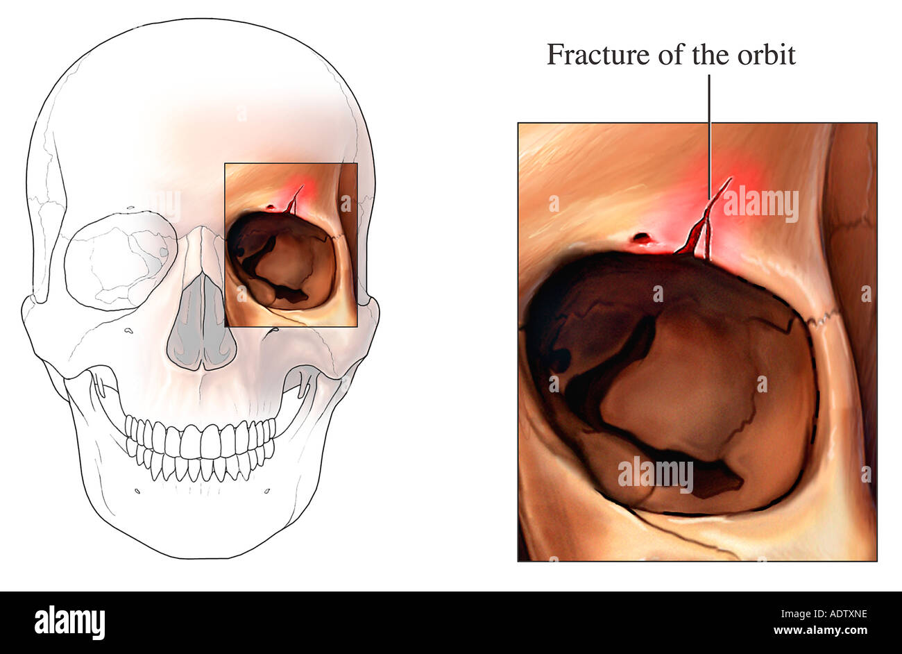 Niedlich Knöcherne Anatomie Orbit Ideen - Anatomie Ideen - finotti.info