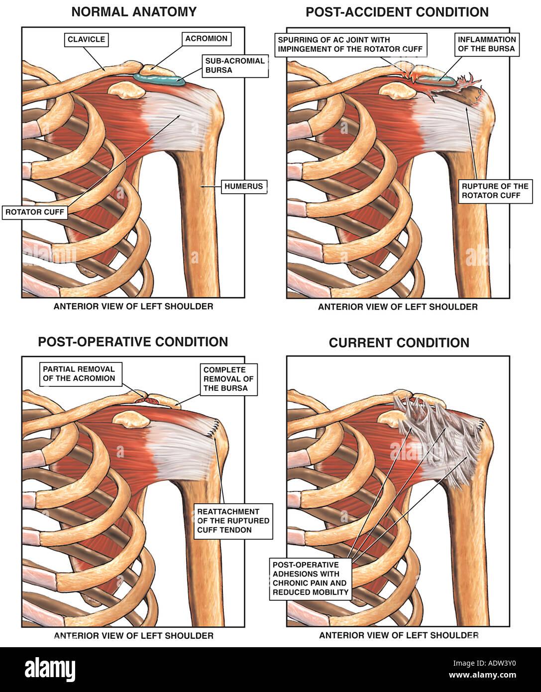 Ziemlich Anatomie Und Verletzungen Der Schulter Fotos - Physiologie ...
