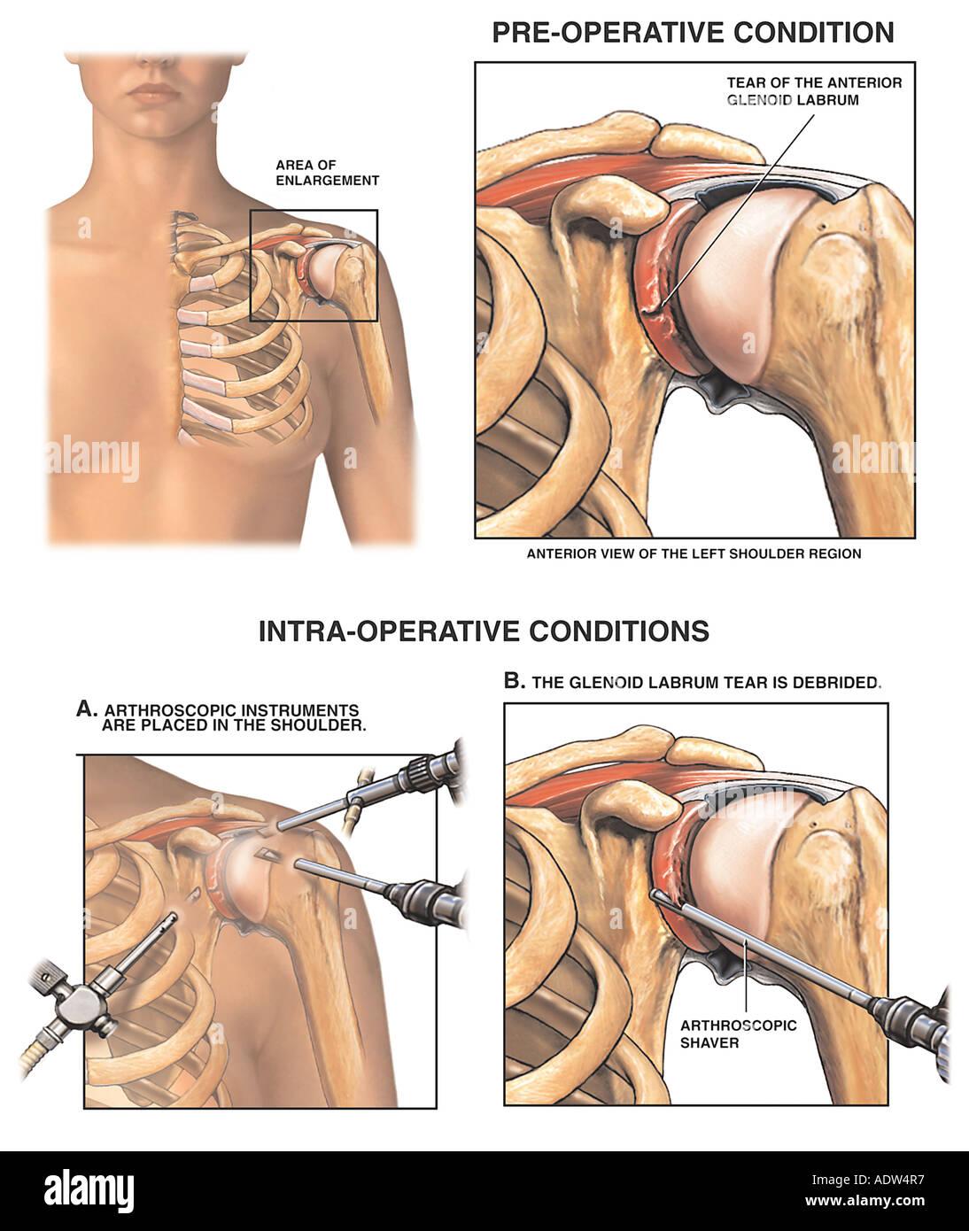 Gemeinsame Schulterverletzung Glenoid Labrum Mit Arthroskopie