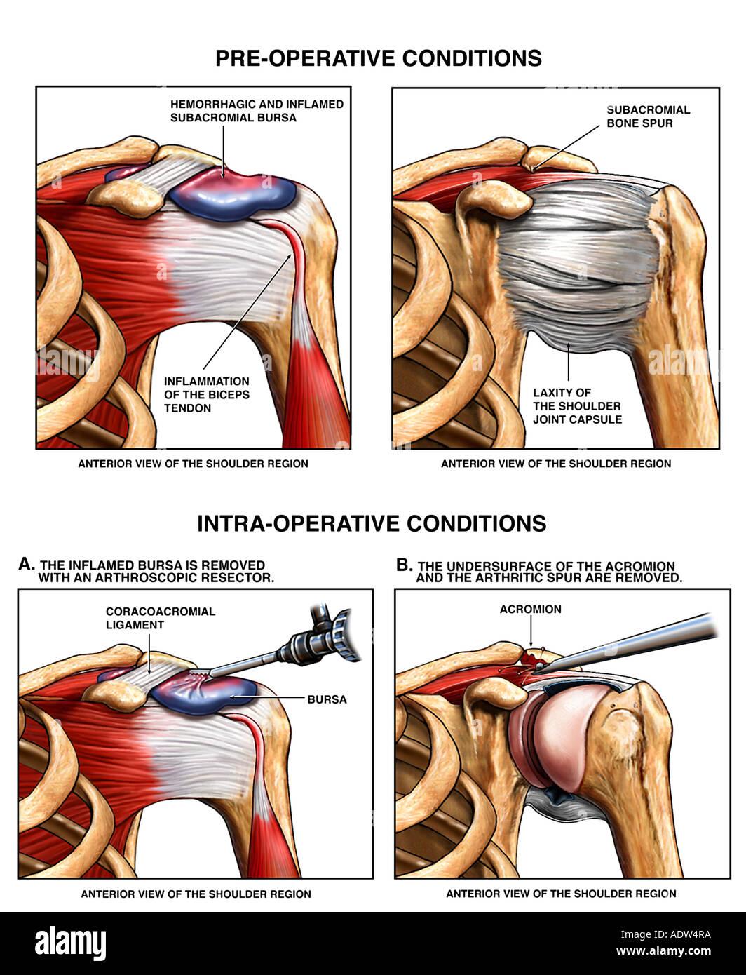 Schulter Verletzung Bursitis und AC gemeinsame Knochensporne mit ...