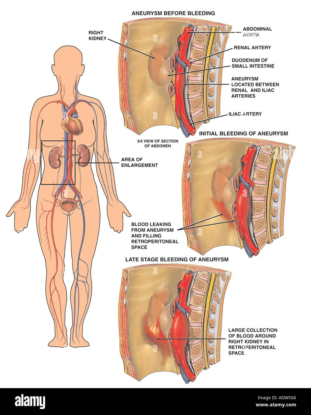 Großartig Aorten Zweige Anatomie Fotos - Physiologie Von ...