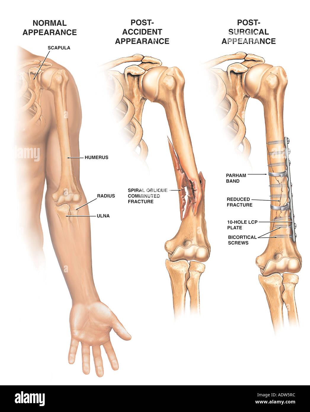 Fein Humerus Lage Galerie - Anatomie Und Physiologie Knochen Bilder ...