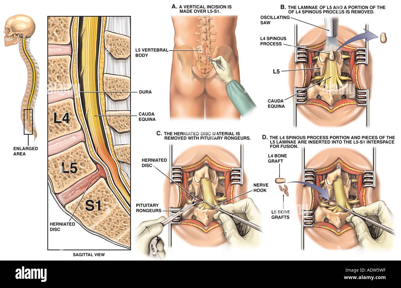Lumbar Spine Laminectomy Surgery Stockfotos Lumbar Spine