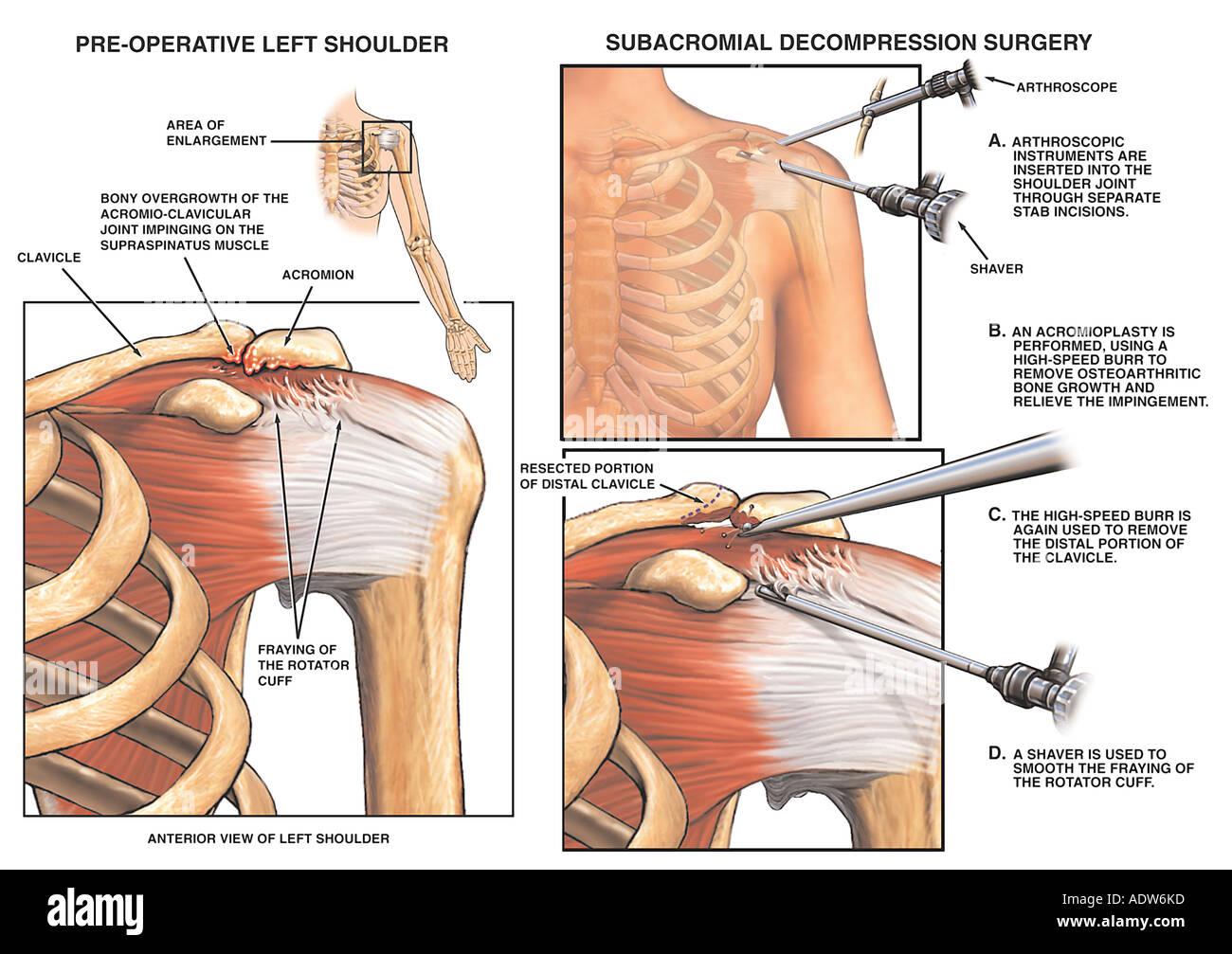 Gemeinsame Impingement Verletzungen Knochensporne mit Acromioplastik ...