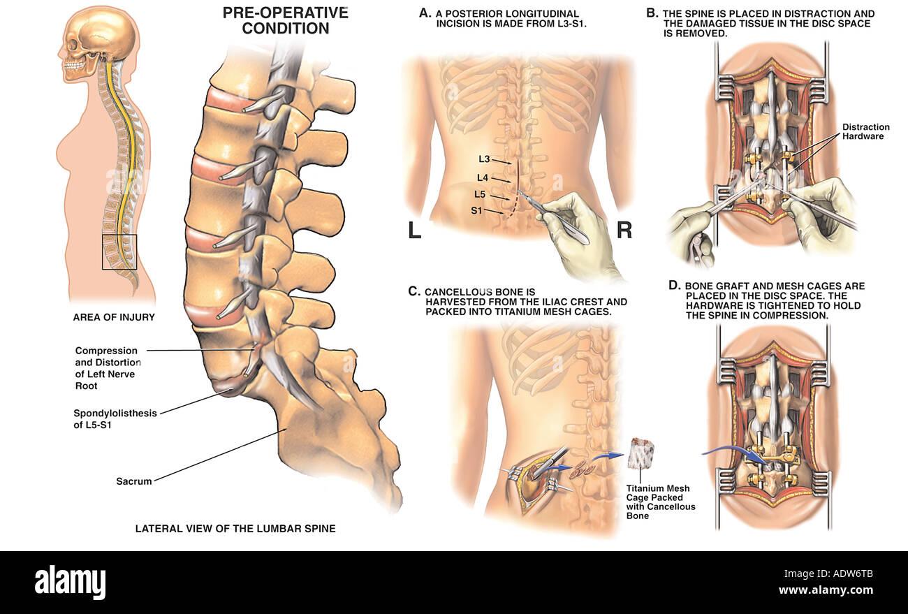 Tolle Lendenwirbel 5 Bilder - Anatomie Und Physiologie Knochen ...