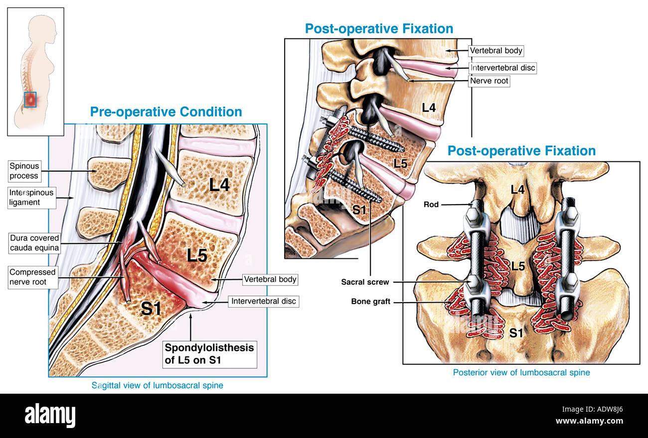 Wirbelsäulenversteifung OP L5 S1 Spondylolisthesis mit chirurgische ...