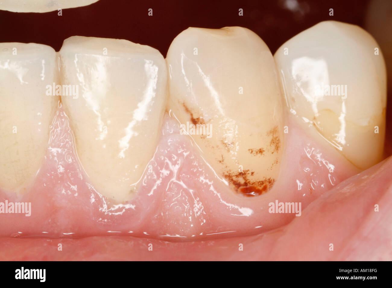 Eklige zähne