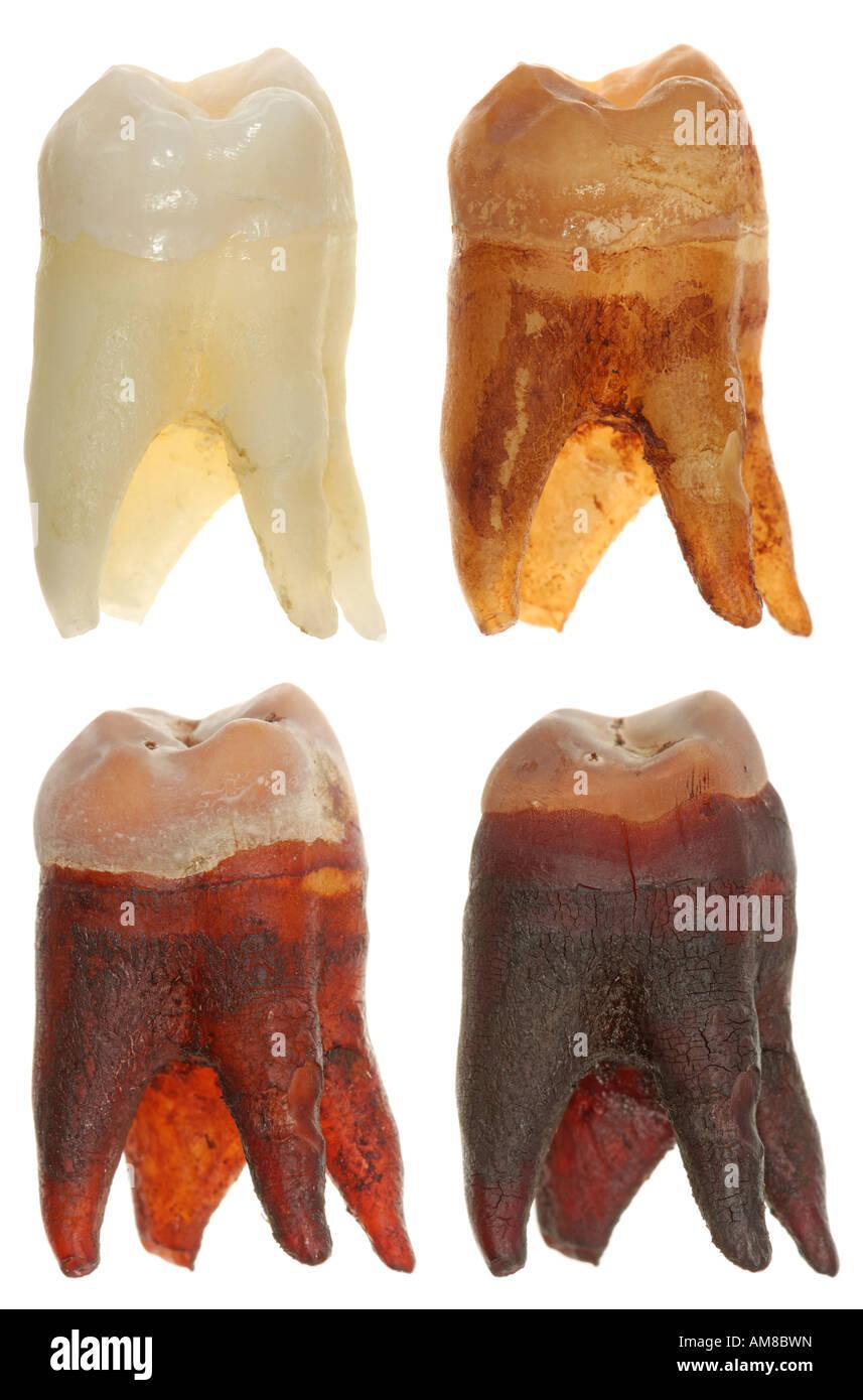 Cola Zähne