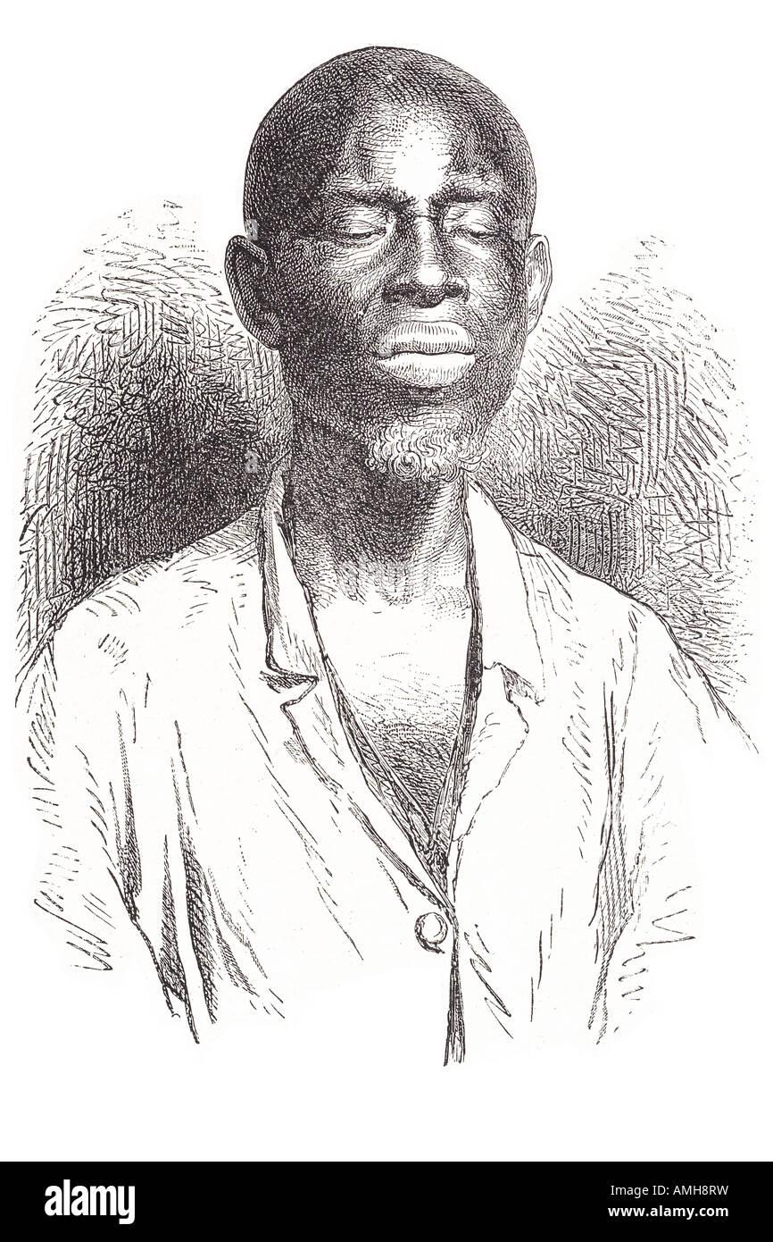 Blinde Schulter Mann Senegambia Blindheit fehlt visuellen Wahrnehmung insgesamt keine Lichtwahrnehmung schwere Sehbehinderung Stockbild