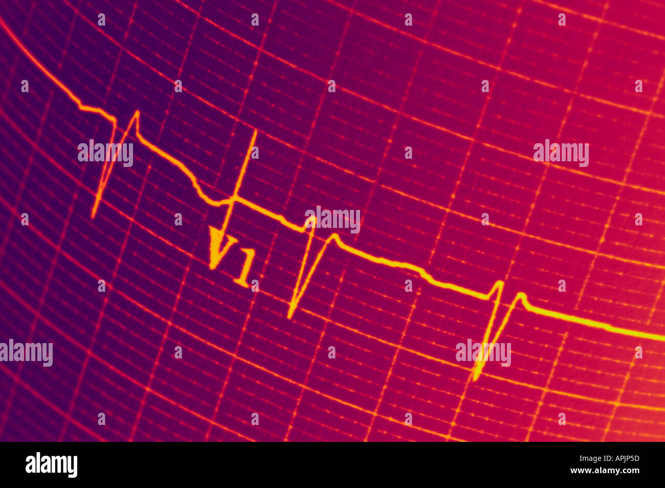 EKG Elektrokardiogramm Closeup View-Konzept Stockbild