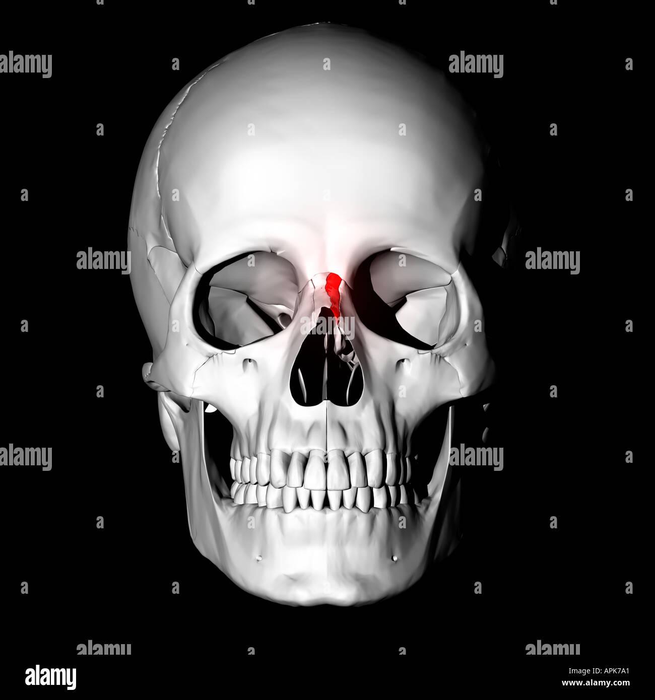 Nasenbein hervorgehoben rot am menschlichen Schädel Stockfoto, Bild ...