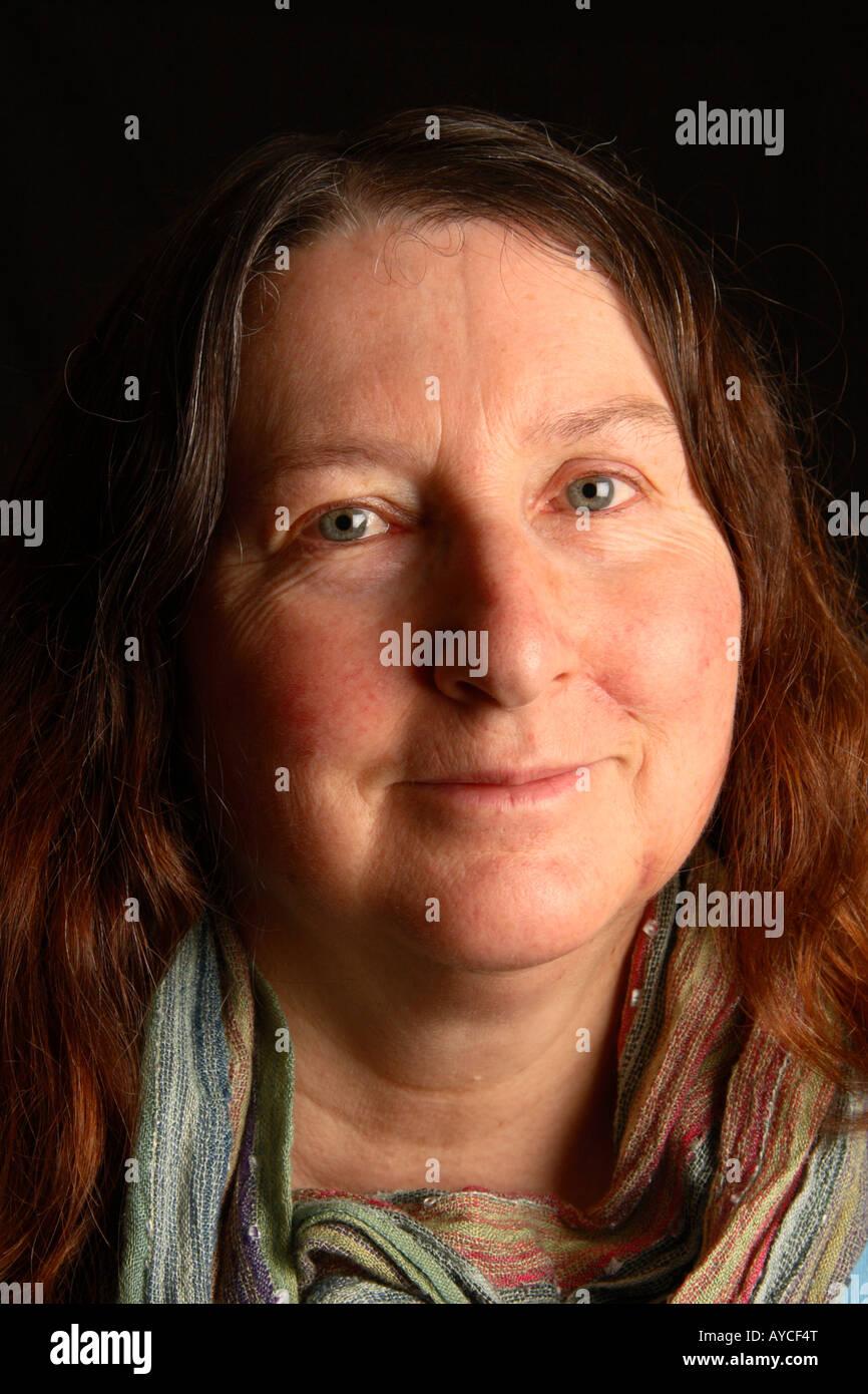 Kosmetik Gesicht Operation Narben Heilung Nach Drei Wochen Stockfotografie Alamy