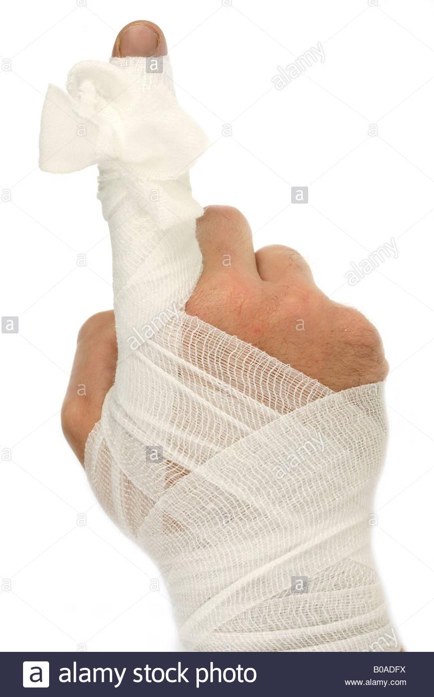 Bandagierte Finger Punkte Stockbild