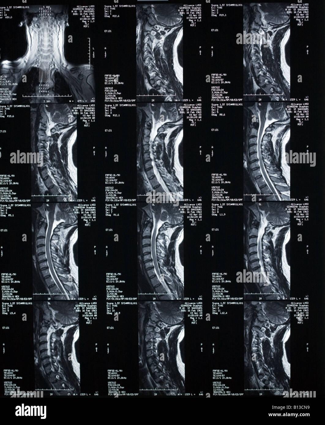 C Spine Stockfotos & C Spine Bilder - Alamy