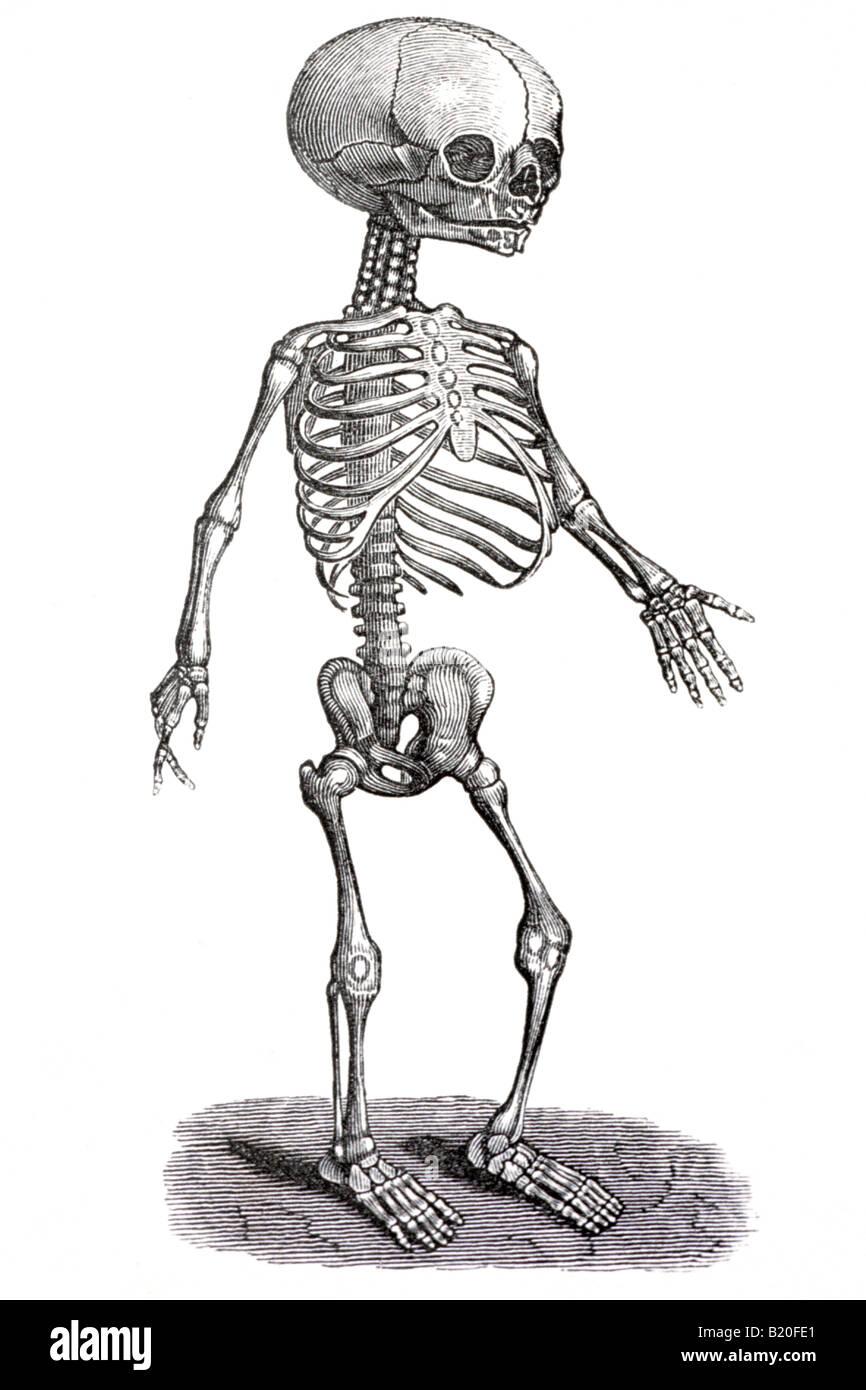 Fetus Skull Stockfotos & Fetus Skull Bilder - Alamy