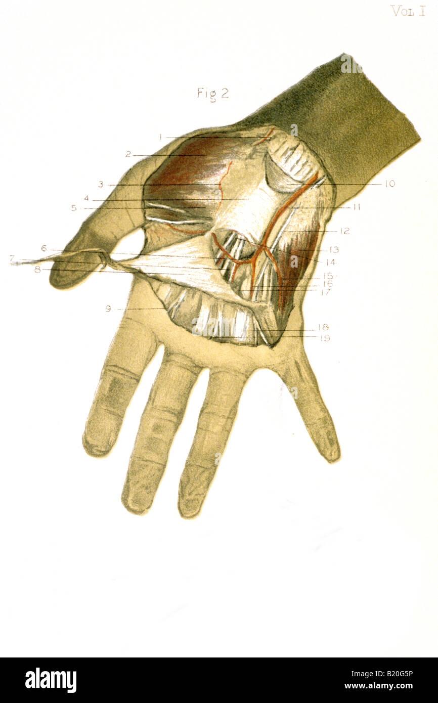 Abbildung Dissektion Der Hand Arterie Nerven Sehnen Stockfoto Bild