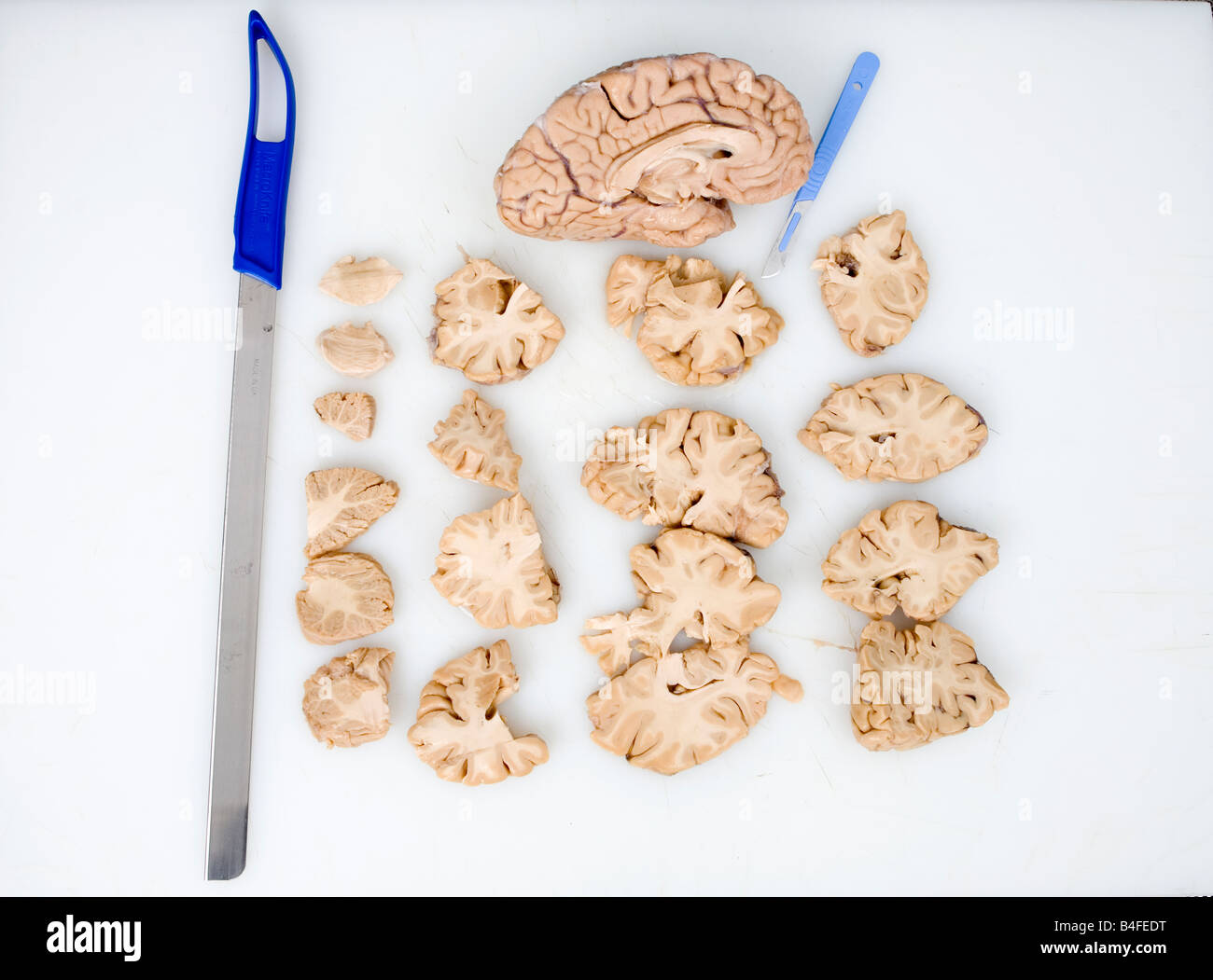 Brain Sections Stockfotos & Brain Sections Bilder - Alamy
