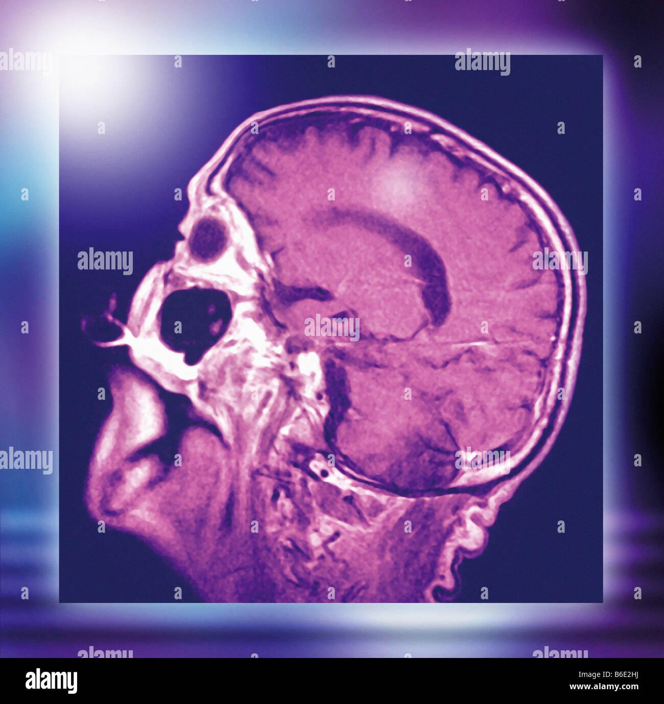 Normaler Kopf und Gehirn, Profil farbig (sagittale) Magnetresonanz ...
