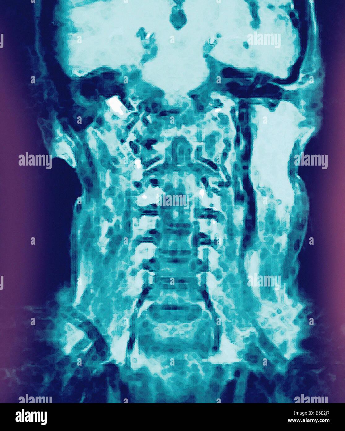 Normaler Kopf und Hals, farbige koronalen Magneticresonance ...