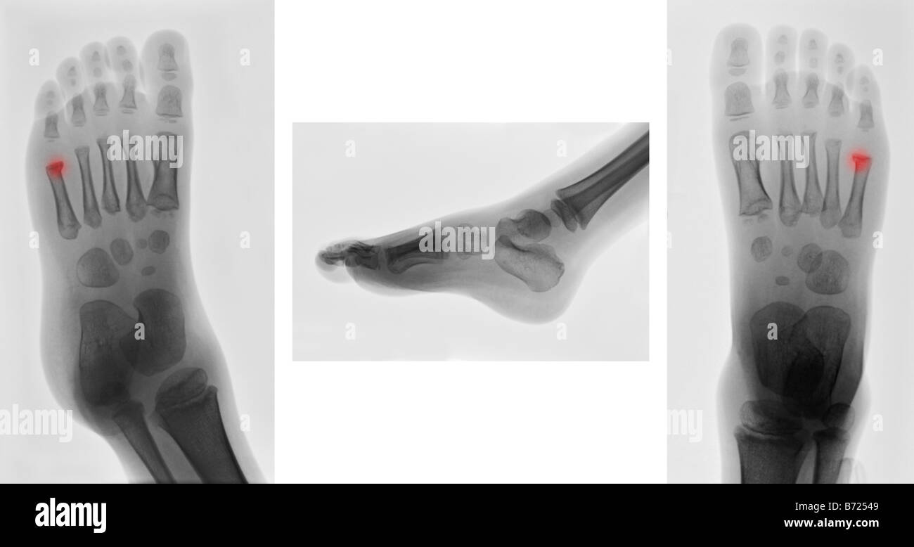 Metatarsal Fracture Stockfotos & Metatarsal Fracture Bilder - Alamy
