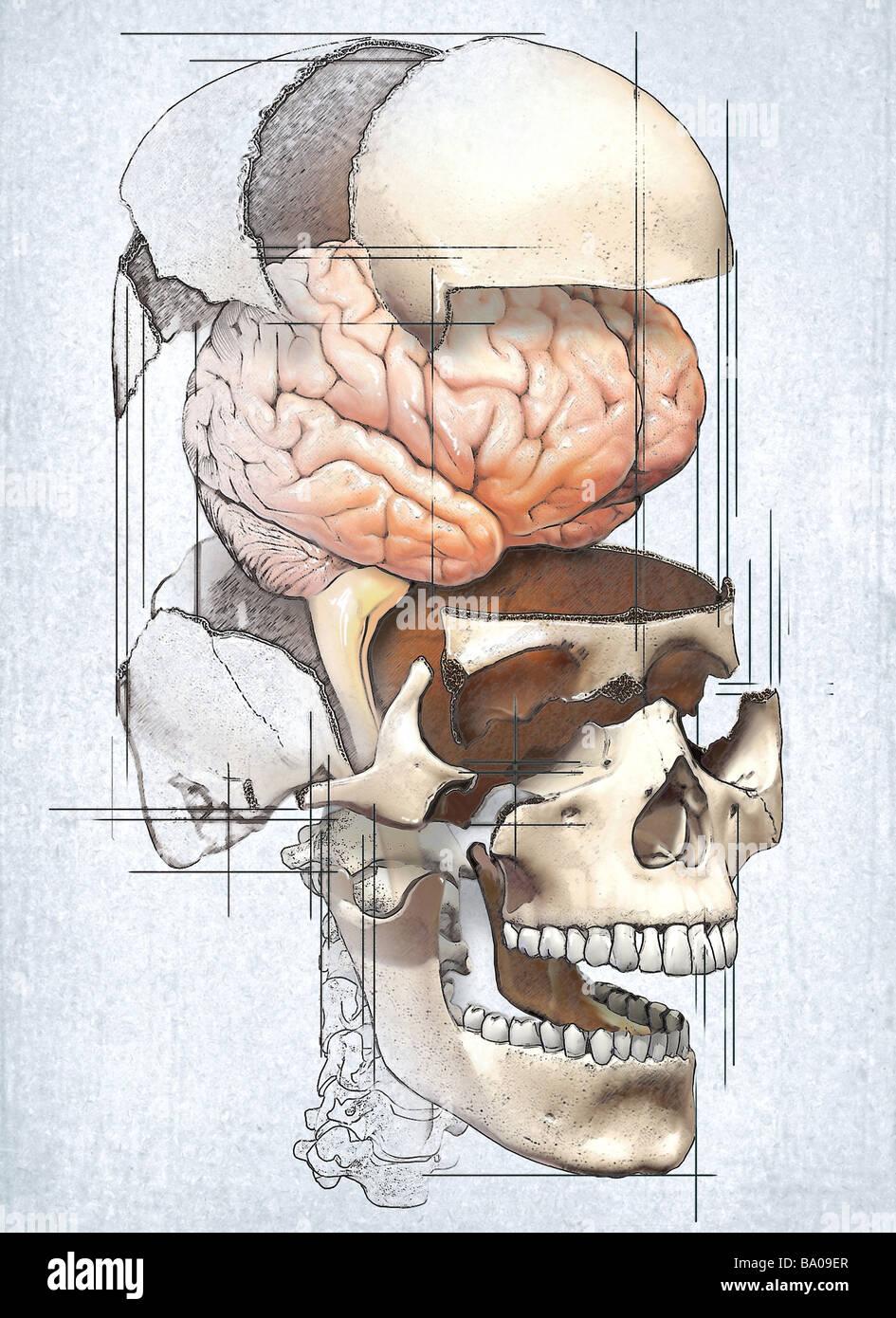 Dieses medizinische Bild zeigt eine Explosionszeichnung des Schädels mit dem Gehirn in einer redaktionellen Stockbild
