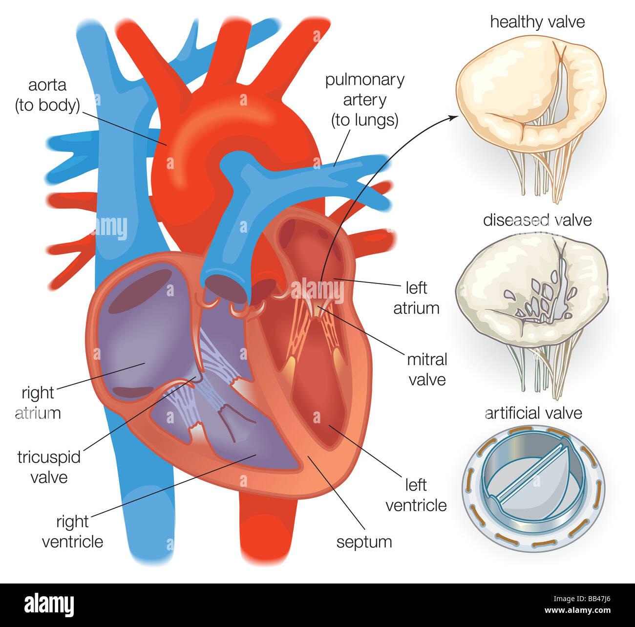 Das Diagramm zeigt ein gesundes Herz-Ventil im Vergleich eine ...