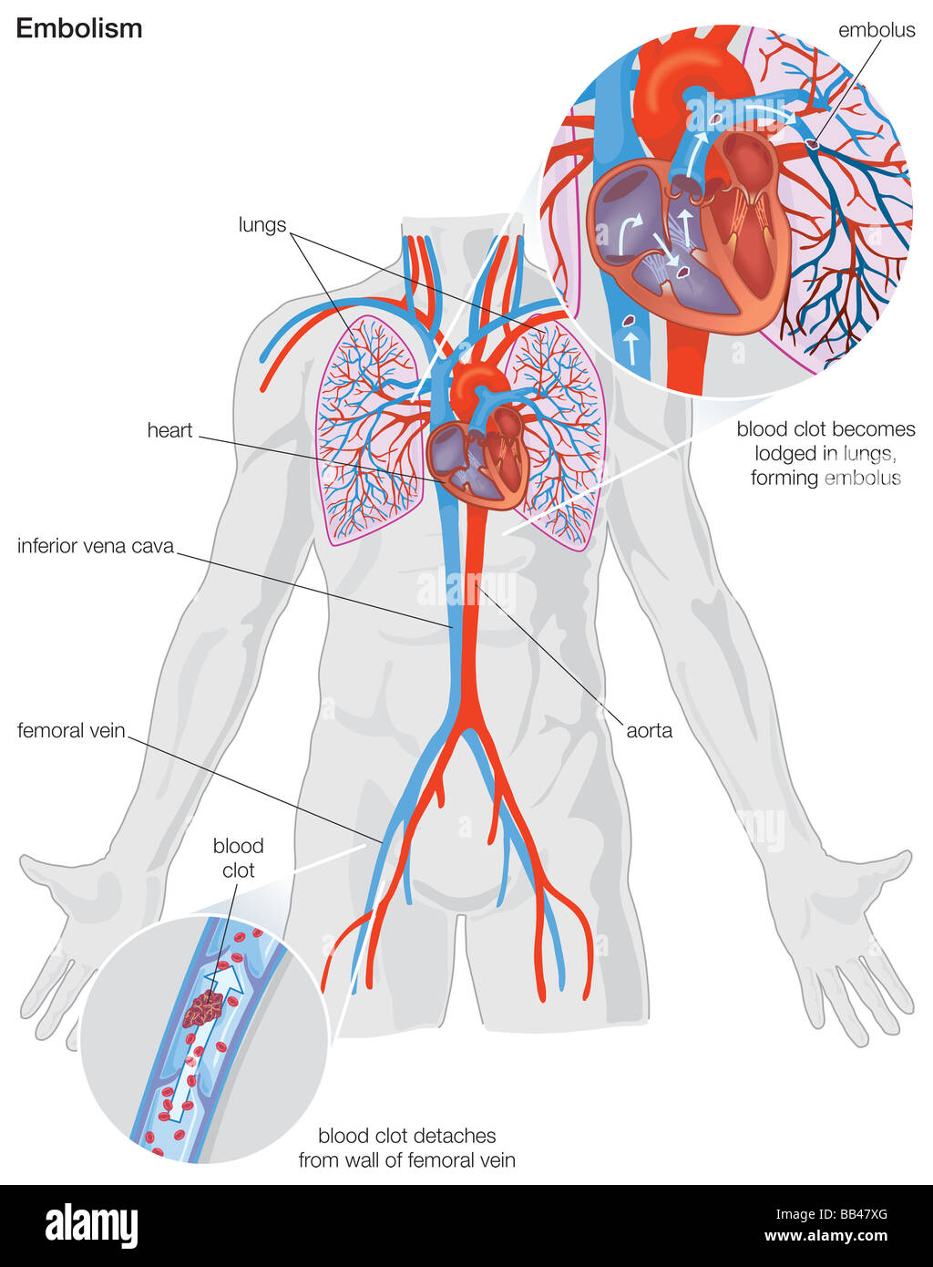 Femoral Artery Stockfotos & Femoral Artery Bilder - Alamy
