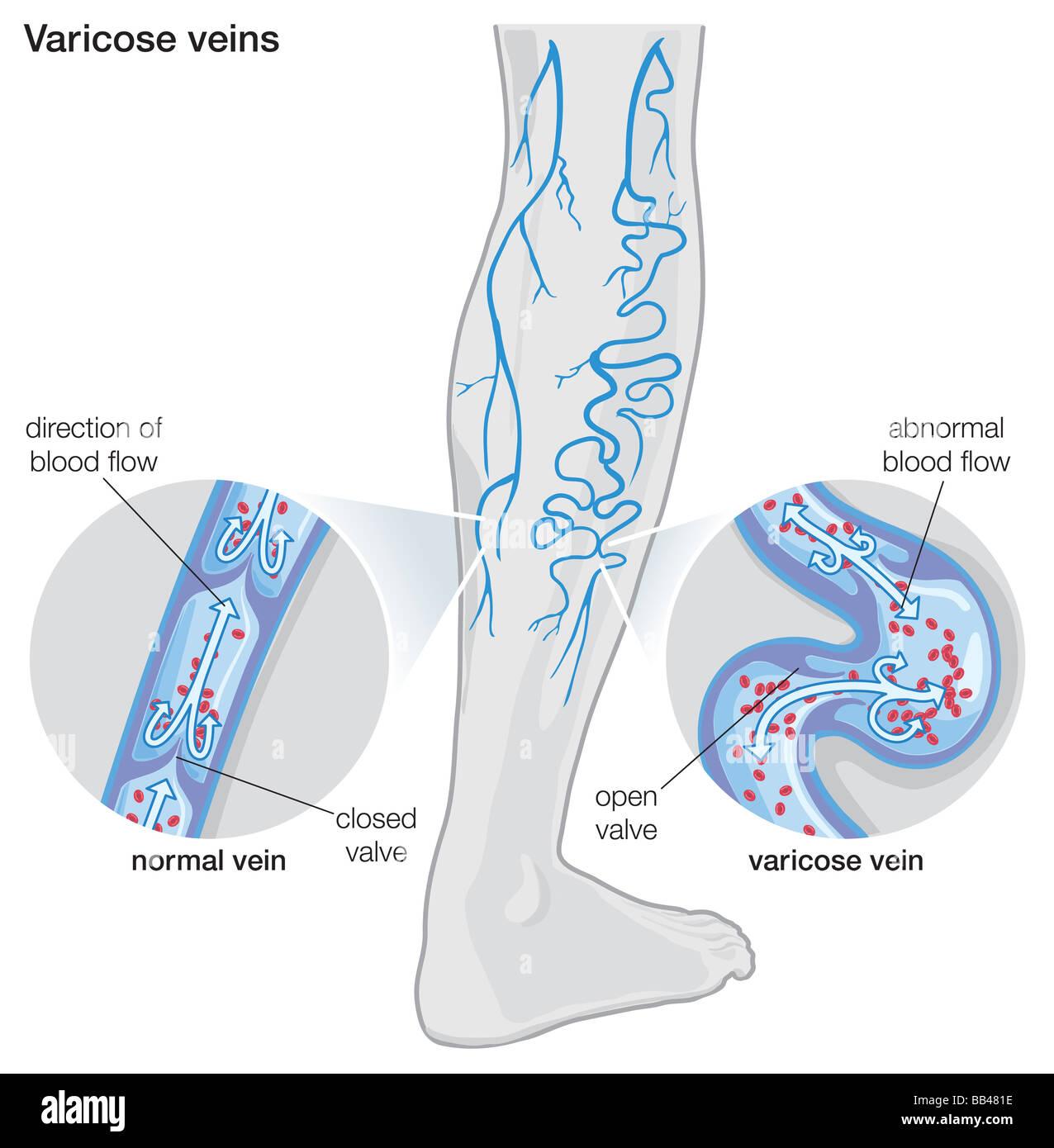 Veins Leg Biology Stockfotos & Veins Leg Biology Bilder - Alamy